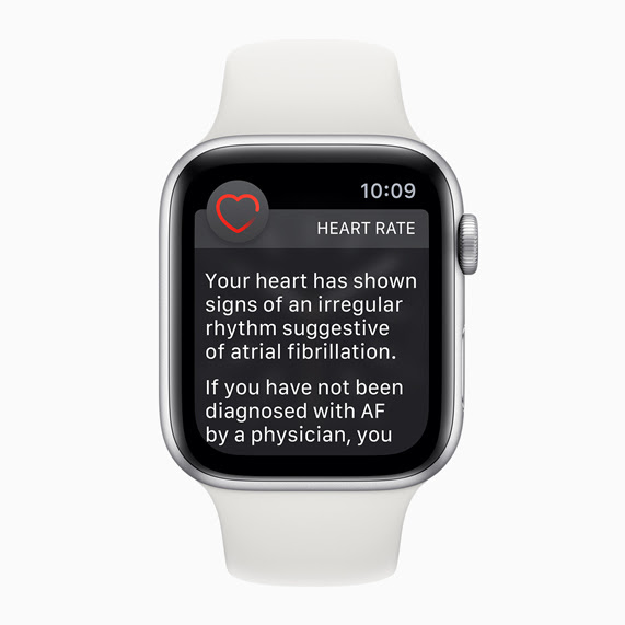 Apple Watch face with irregular heart rhythm notification.