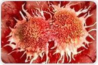 Study defines biomarker in response to treatment of castration-resistant prostate cancer