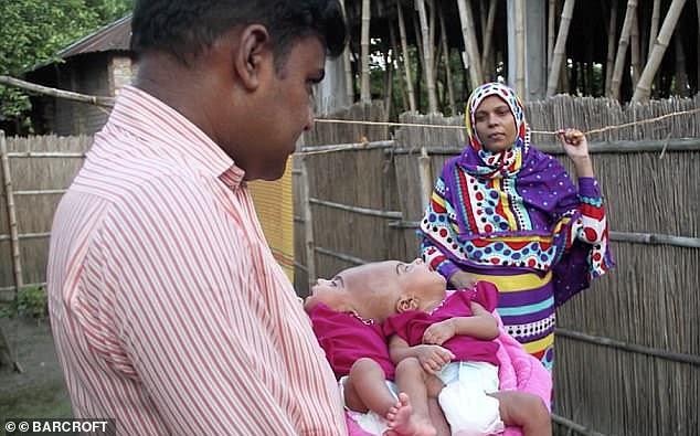 Rabeya and Rokeya have already amazed doctors as very few craniopagusconjoined twins survive birth