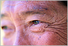 A closeup of aging skin on someone's face.