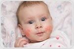 Breastfeeding and Allergies